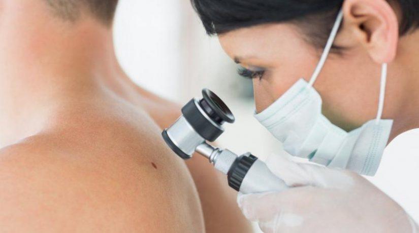 Киевляне могут бесплатно провериться на рак кожи
