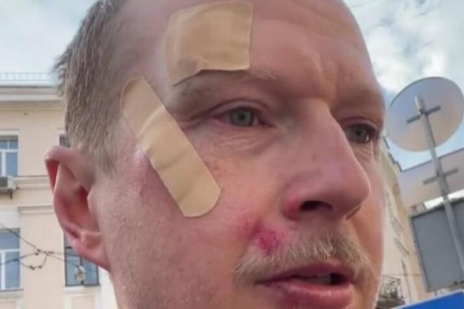 У центрі Києва побили Майкла Щура (ВІДЕО)